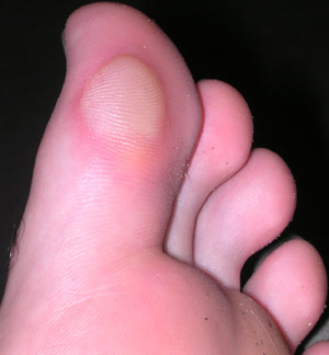 blister example