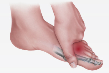 morton's toe 1