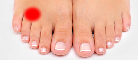 morton's toe 2